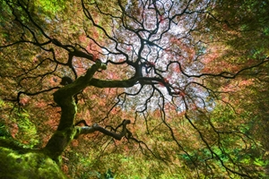 Picture of Arterial Tree